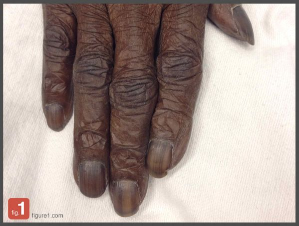 This patient arrived in the ER unsure of why his fingernails had become so dark. His hemoglobin was found to be 22 g/dL and h