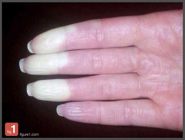 "This is a textbook image of <a href=""http://www.mayoclinic.org/diseases-conditions/raynauds-disease/basics/definition/con-200"