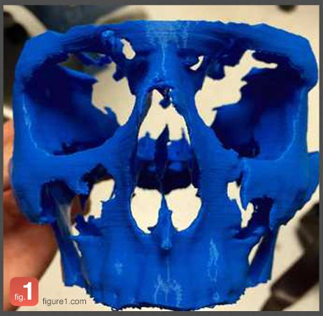 In this case, a 3D printed model was constructed from a CT scan of the patient's fractured skull. The model was used to plan