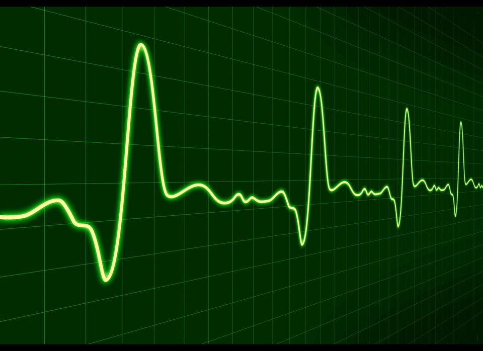 "Electrocardiograms, better known as EKGs, made the Choosing Wisely list. The painless test is ""done routinely during a physic"