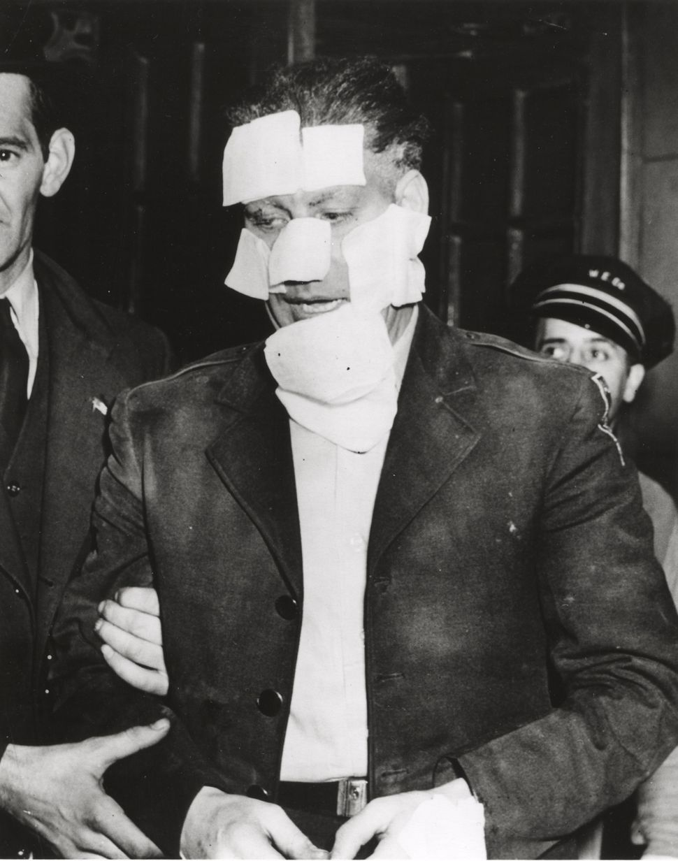 A man with bandages on his face is arrested and held by a man with an American flag pin on his coat lapel, 1940. New York, Un