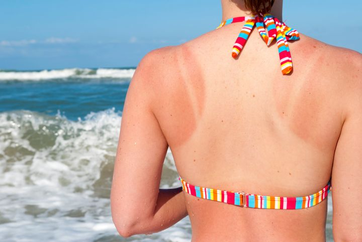 Sunburn pattern on back of young woman spending a couple days at the beach
