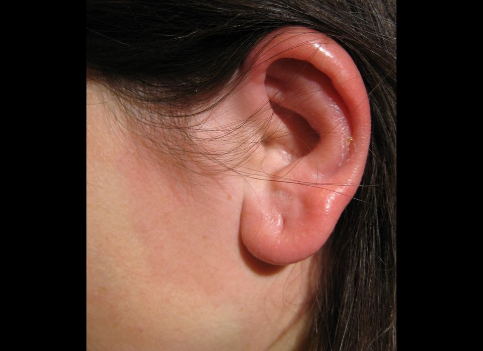 This condition can refer to inflammation or infection of either the outer ear or the outer ear canal -- most often, it is sim
