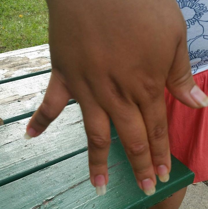 <span><span><span>YancyMejía'spinky finger twists to the right, while her ring finger bends to the le