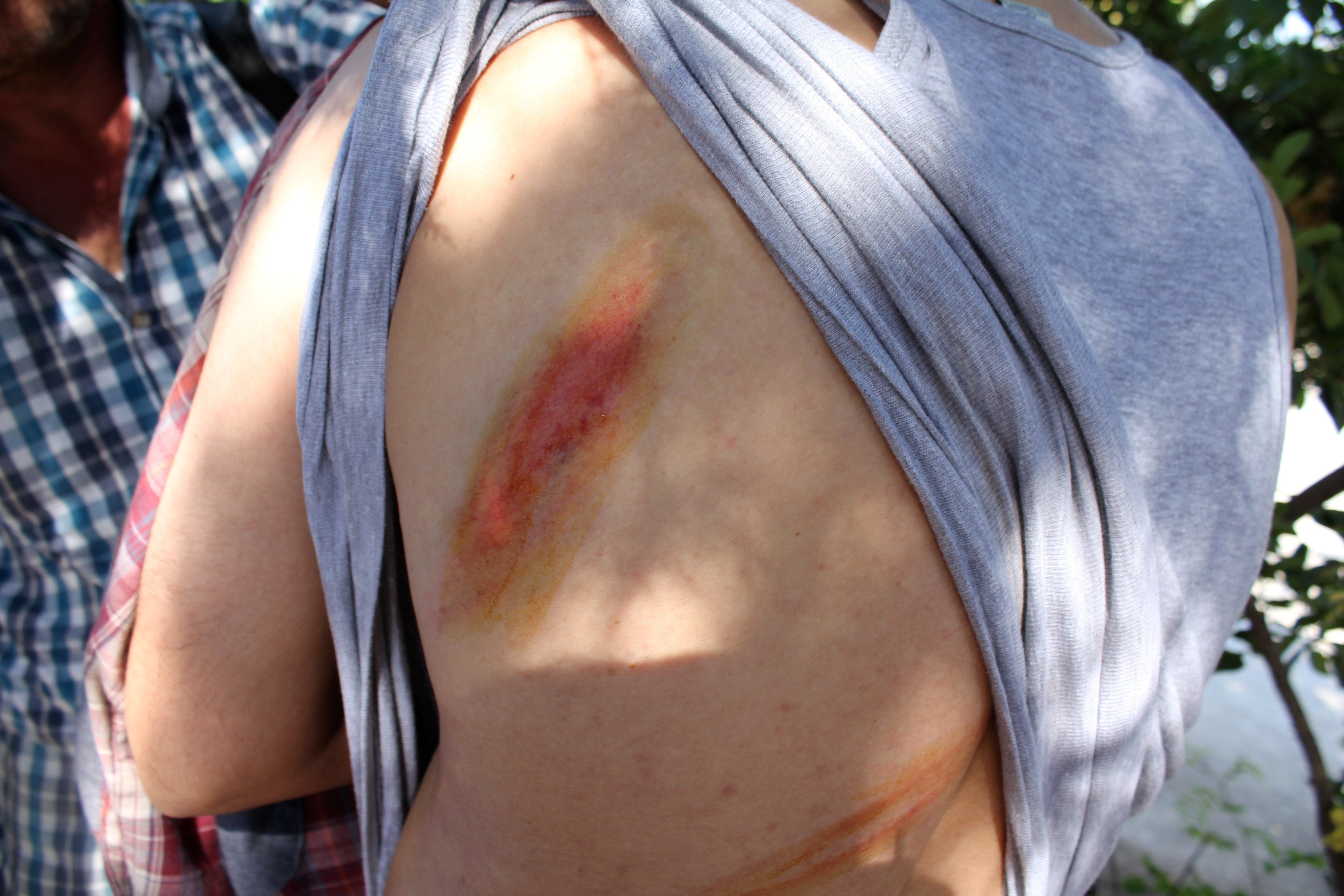 A Syrian lawyer and father of three shows whip marks on his back from what he saidwas an attack by masked gunmen in int