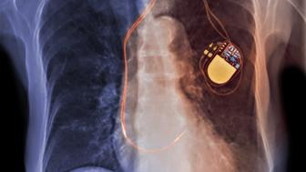 Color-enhanced x-ray of an implantable cardioverter-defibrillator (ICD), commonly known as a pacemaker. This is a small battery-powered electrical impulse generator which is implanted in patients who are at risk of sudden cardiac death due to ventricular f