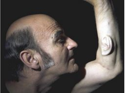 Australian Artist Has Ear Growing Out Of Arm