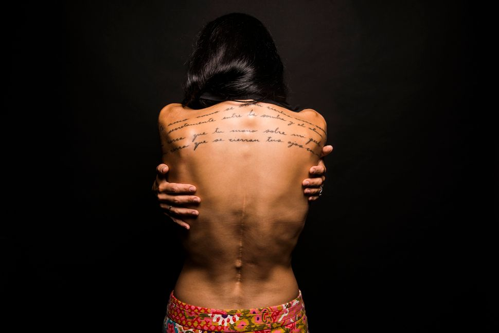 <em><strong>My back was broken in a car accident. The scar is from a resulting thoracic spinal fusion.<br></strong></em><em><