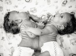 Photographer Captures Breathtaking Images Of Conjoined Twins Before Surgery