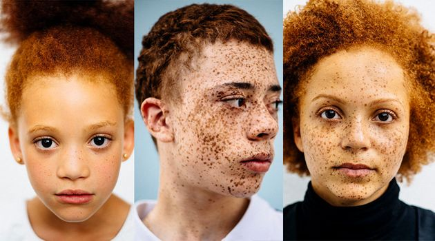 Photographer Explores The Beautiful Diversity Of Redheads Of