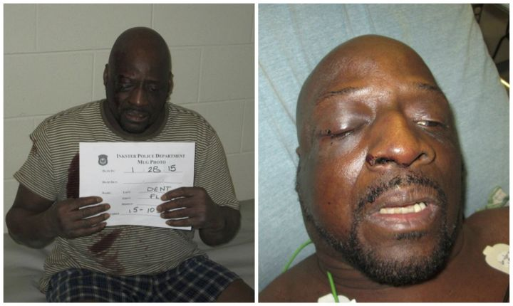 Floyd Dent's injuries, shown the night of his arrest and during his subsequenthospitalization.
