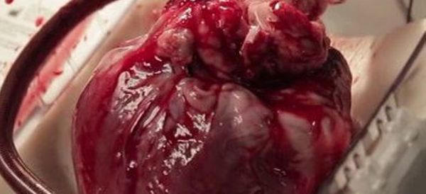 Man's Life Saved When He Gets Heart Still Beating In A Box
