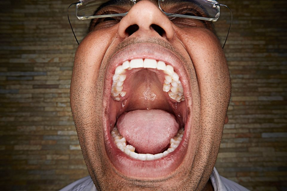 Vijay Kumar V.A of India holds the record for most teeth in one mouth: 37 in all.