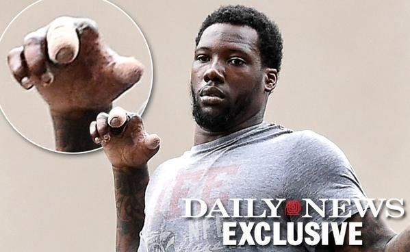 Oh Man Does Jason Pierre Paul s Hand Look Mangled What