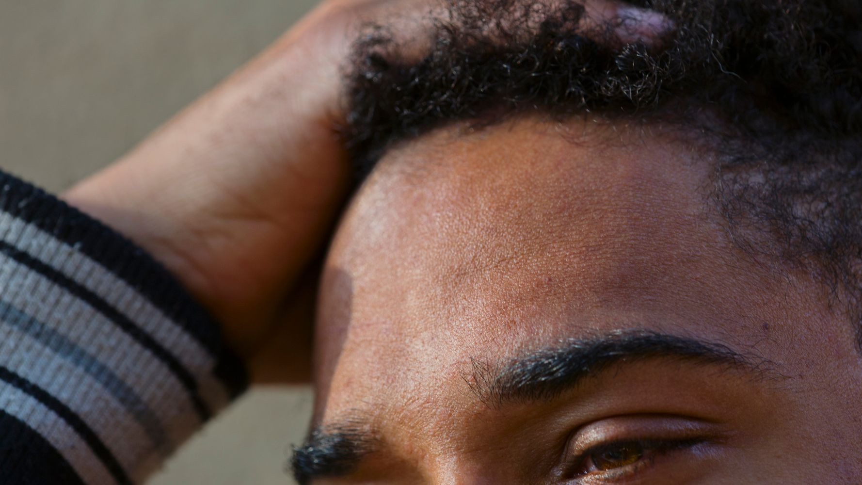 Buyer Beware: This Popular Baldness Cure Could Cause Fainting
