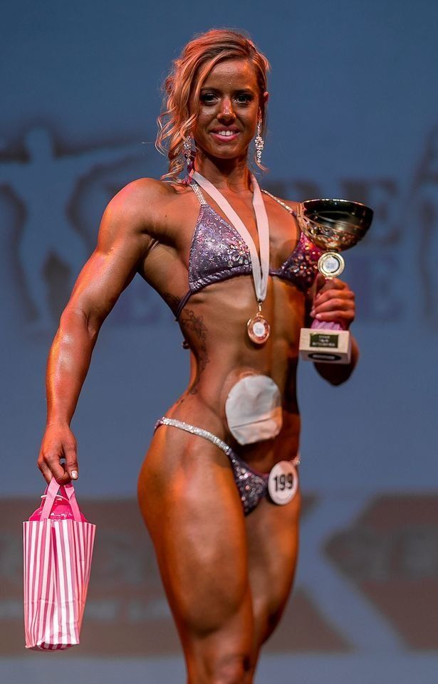 Champion Bodybuilder With Colostomy Bag Redefines Beauty And Strength
