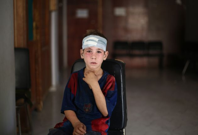 A child receives medical treatment after Syrian regime forces staged an airstrike in Damascus on Sept....