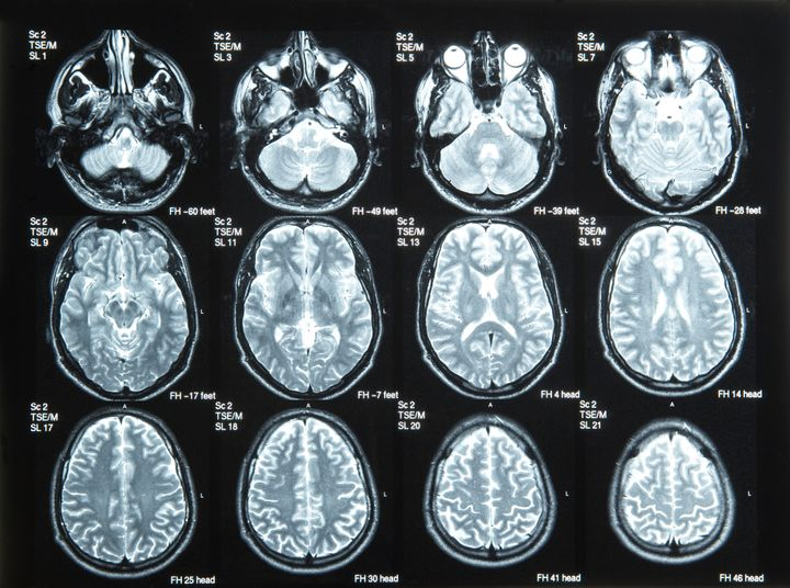 Brain Scans Could One Day Predict Depression Relapse ...