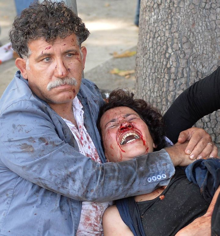 Survivors of the twin blasts that killed at least 95people in Ankara.