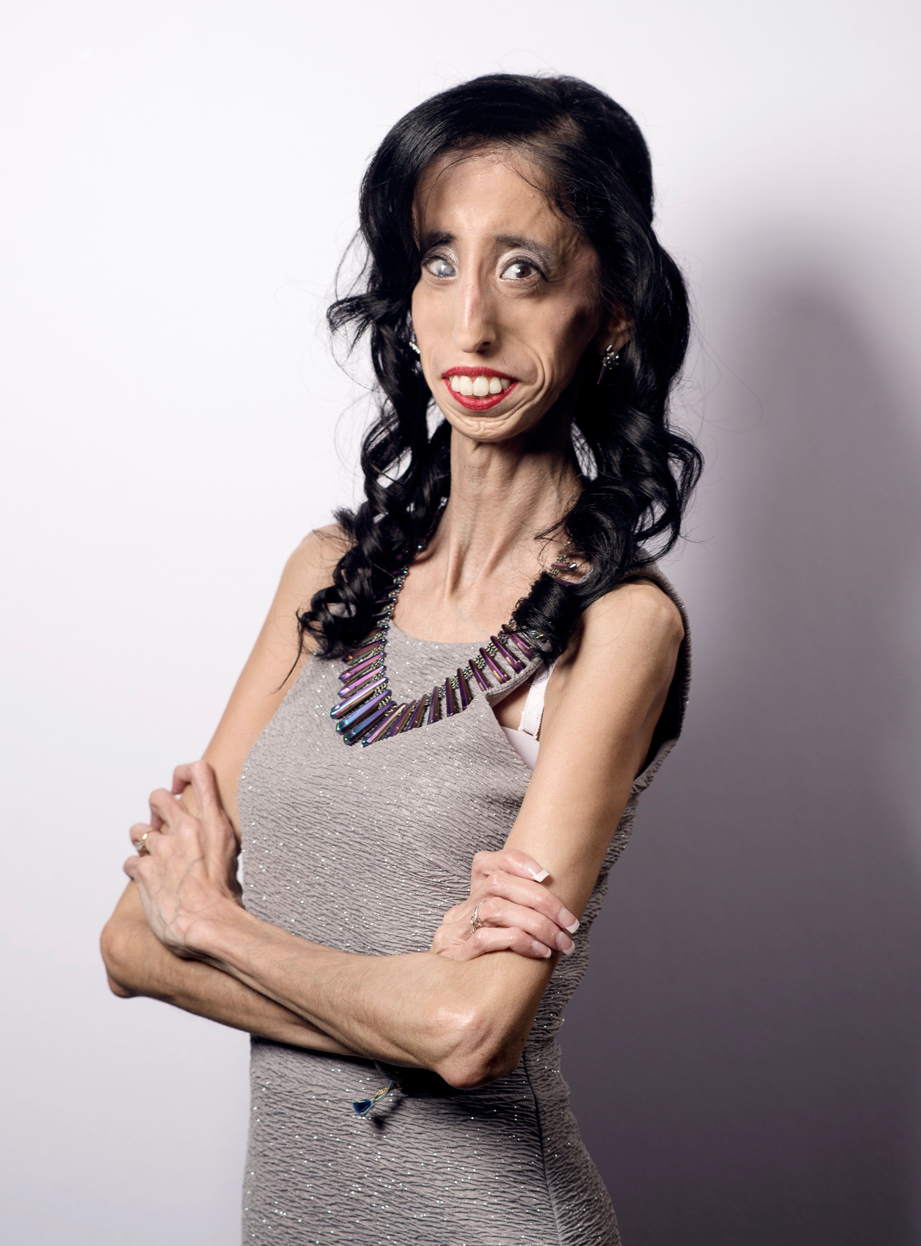 AUSTIN, TX - MARCH 14: Lizzie Velasquez poses for a portrait for the film 'A Brave Heart: The Lizzie Velasquez Story' during 2015 SXSW Music, Film + Interactive Festival at the Paramount Theatre on March 14, 2015 in Austin, Texas. (Photo by Michael Buckner/Getty Images)
