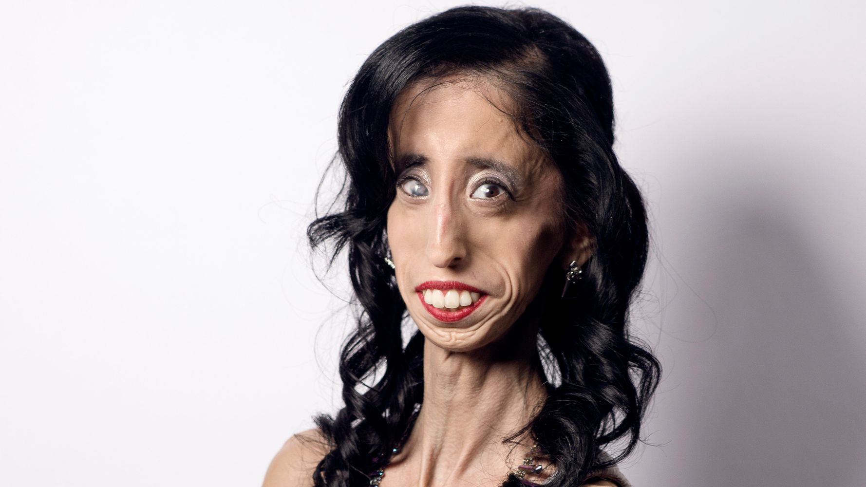 How Being Called The 'World's Ugliest Woman' Transformed Her