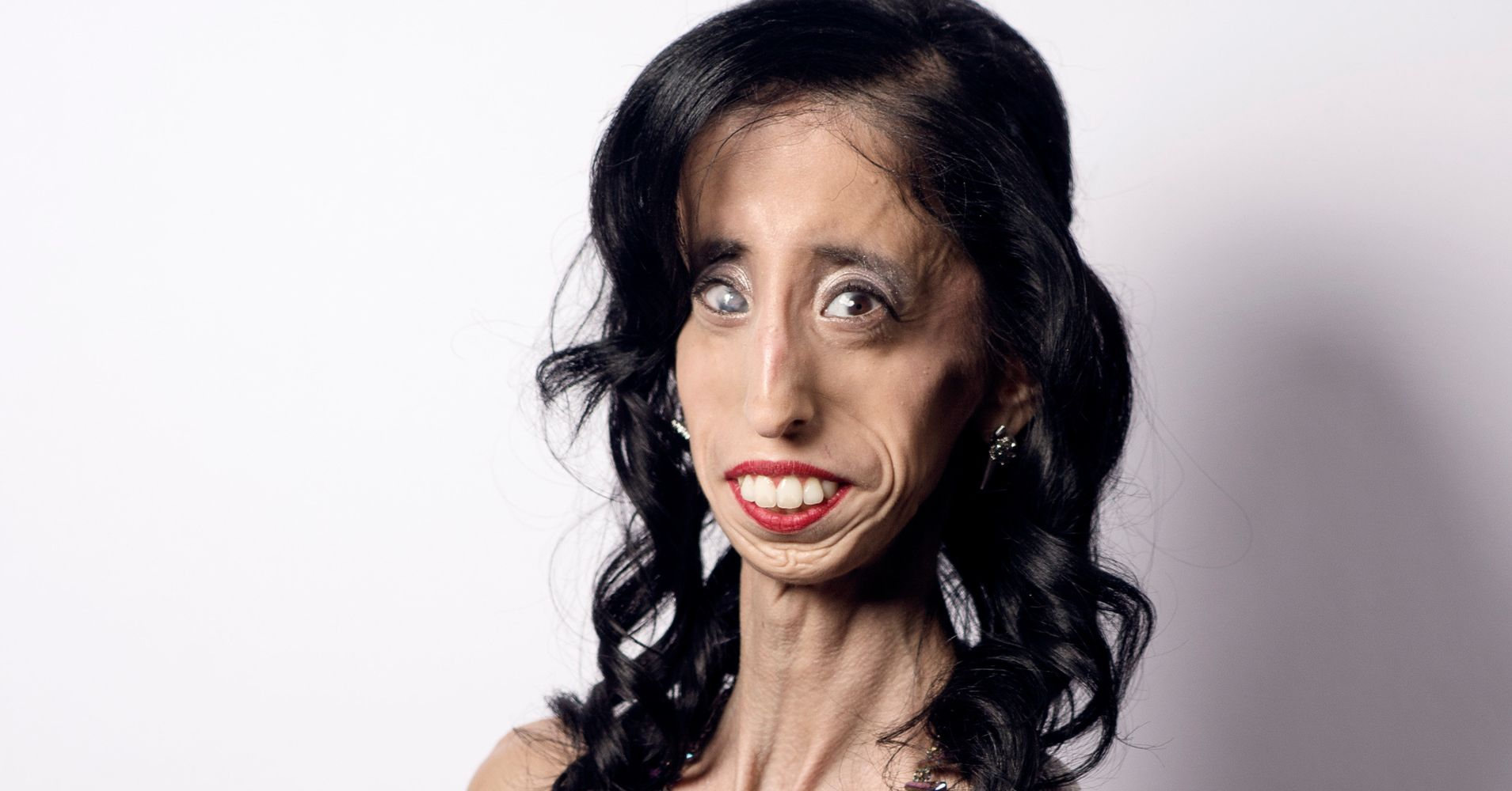 How Being Called The Worlds Ugliest Woman Transformed Her Life  Huffpost-4465