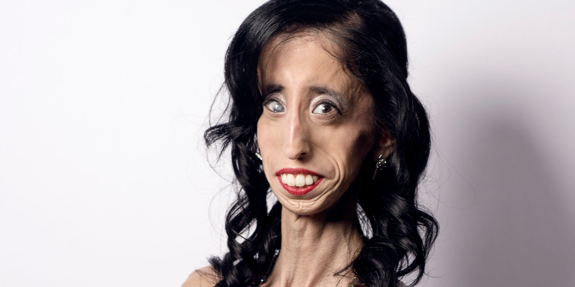 How Being Called The 'World's Ugliest Woman' Transformed ...