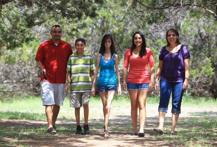 Lizzie Velasquez, age 21, with her father Lupe, brother Chris, sister Marima and mother Rita in 2010 in Austin, Texas.