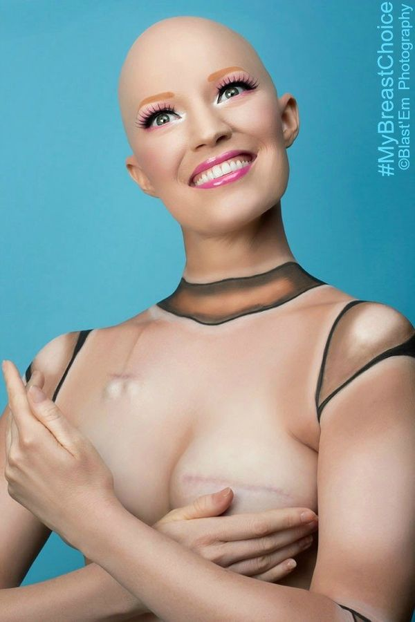 """This photo was taken right at the end of chemo… I have no hair. And my breasts were fully expanded at that poin"