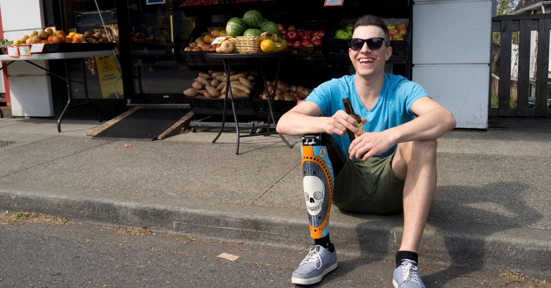 Dating someone with prosthetic legs