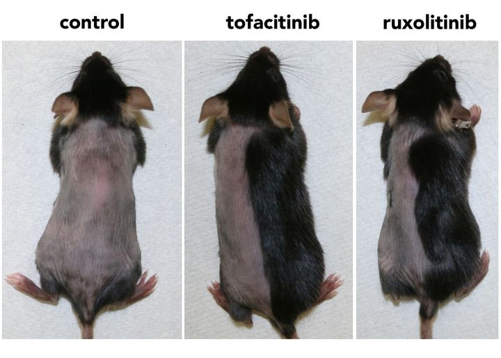 Within three weeks, mice treated topically with a JAK-injibiting drug (ruxolitinib or tofacitinib) had regrown nearly all the