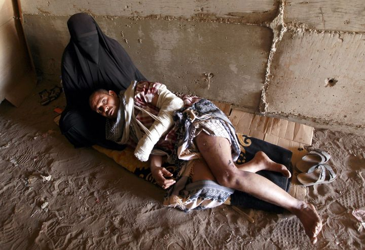 A Yemeni man who was wounded and lost his home because of an airstrike by the U.S.-backed Saudi coalition in the Yemeni capit