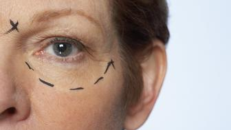 Close-up of plastic surgery patient