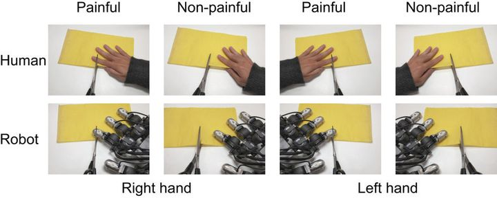 Examples of the painful and non-painful images that researchers used in the study.