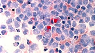 Human cells with acute myelocytic leukemia (AML) in the pericardial fluid, shown with an esterase stain at 400x.