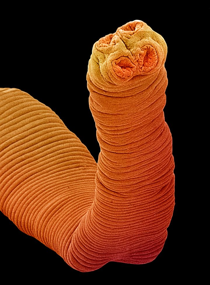 The head of a tapeworm like that found in the Colombian patient is equipped with hooks and suckers for attaching to the host.