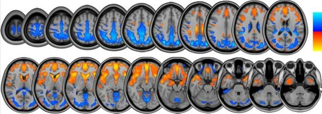 """<span class='image-component__caption' itemprop=""""caption"""">Brain scans from the NASA study show changes in brain volume that occur during long-duration head-tilted bed rest, whichare similar to the changes seen afterspaceflight.</span>"""