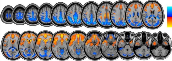 Brain scans from the NASA study show changes in brain volume that occur during long-duration head-tilted bed rest, which&nbsp