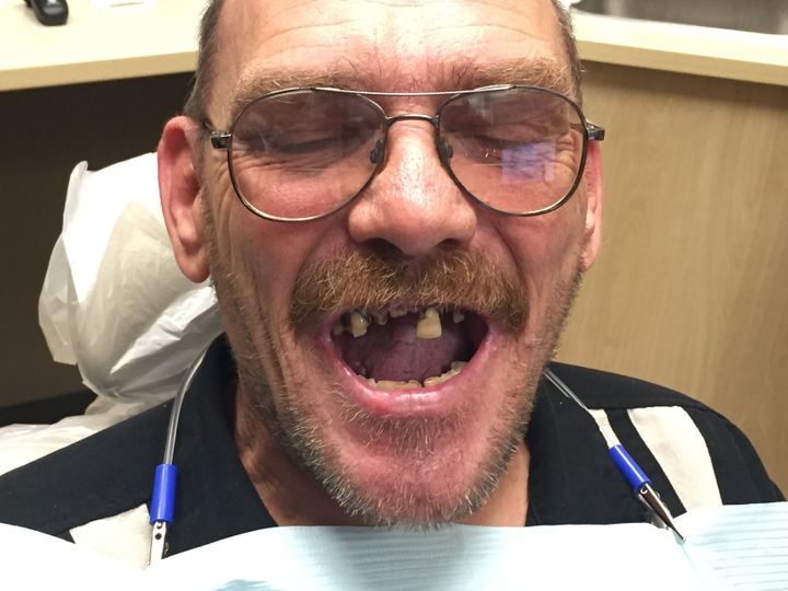 Most Vets Don T Qualify For Va Dental Care So These Dentists Are