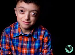 Photo Series Forces You To Look Beyond Kids' Rare Disabilities