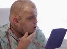 Face Transplant Surgeons Make History And Change A Life