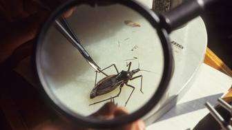 Chagas Disease, Brazil, Rio De Janeiro, Oswaldo Cruz Institute, Research Into Chagas Disease, Rhoduius Prolixus feeding on blood, Chagas is an incurable disease transmitted by Triatominae bugs, (Photo by Universal Images Group via Getty Images)