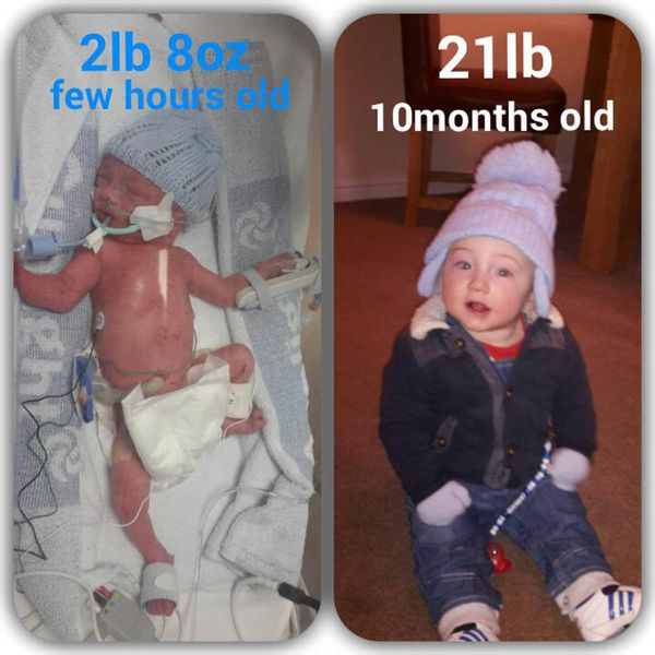 """My little boy Junior was born at 28 weeks; he weighed two pounds, eight ounces. He was in the NICU for two weeks, and h"