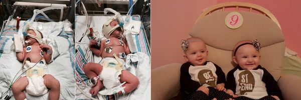 """My twin girls, Stevie and Harper, were born at 34 weeks and spent three weeks in the NICU. They had difficulty breathing, ma"