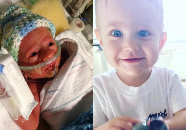 """Elliott was born eight weeks premature at just about 32 weeks after my water broke at 28 weeks. He was born at three pounds,"