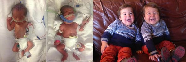 """My twins, Breckin and Cameron, were born at 30 weeks. They were three pounds, one ounce at birth and stayed in the NICU for"