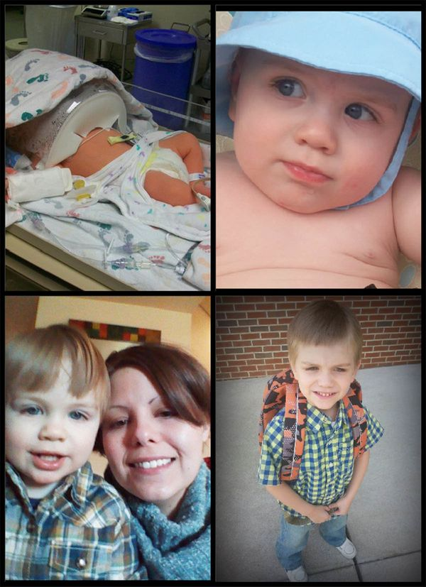 """Jasper was born five weeks early on Aug. 29, 2010. He was in the NICU not for being underweight or underdeveloped, but he ha"