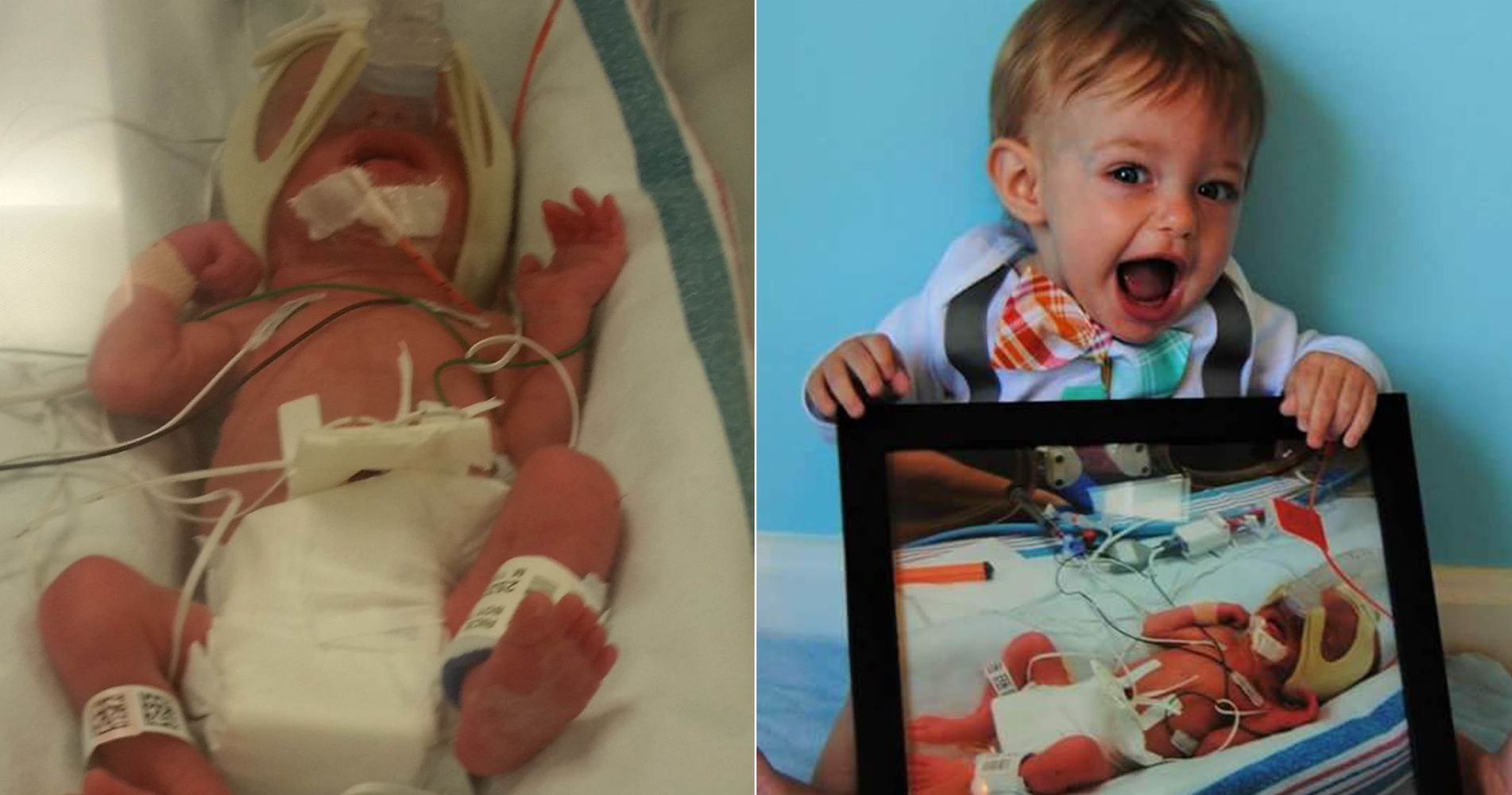 Side By Side Preemie Photos Show How Far These Little