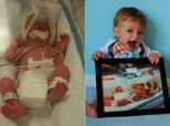 Side-By-Side Preemie Photos Show How Far These Little Fighters <br>Have Come