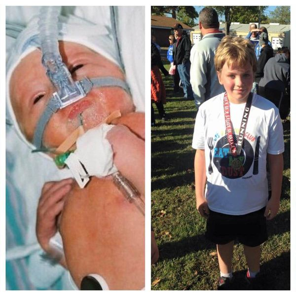 """Jack is ten now. He was born six weeks early and spent three weeks in the NICU."""